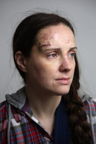Hit and Run victim Tracey Taylor sits for a portrait.